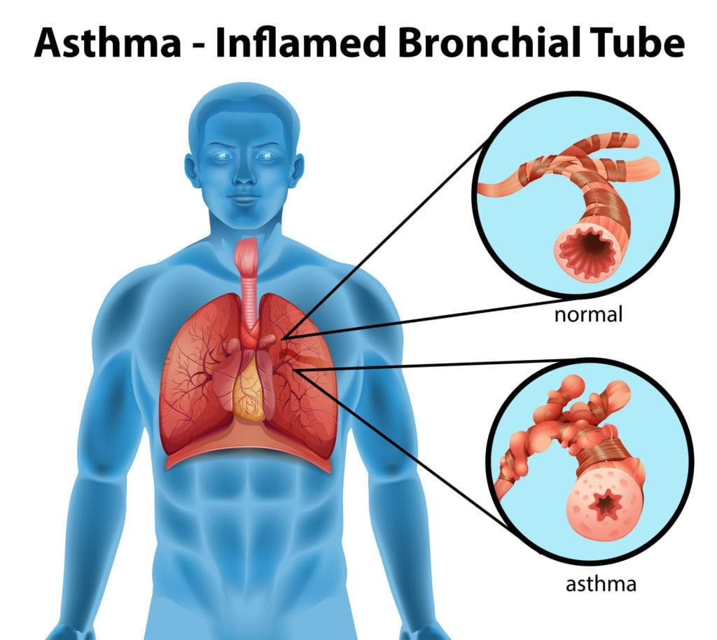 An image showing the asthma-inflamed bronchial tube on a white background